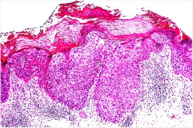 carcinoma escamocelular in situ tipo enfermedad de bowen