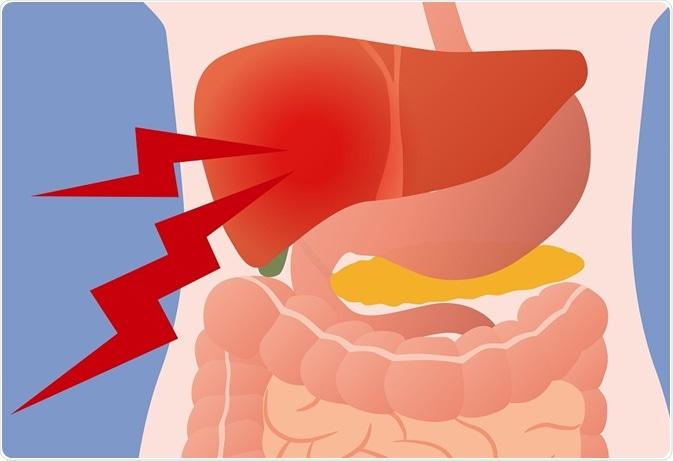 dor de vesícula biliar