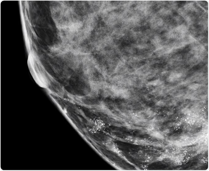 Idea and breast lump calcification with