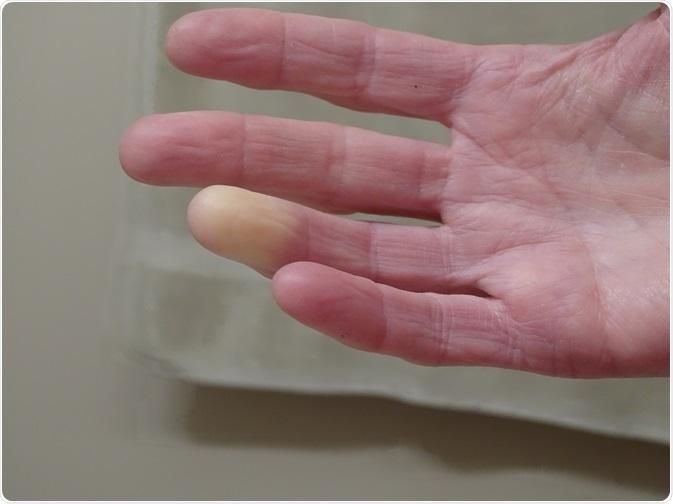 anti imflammatory diet raynaulds disease