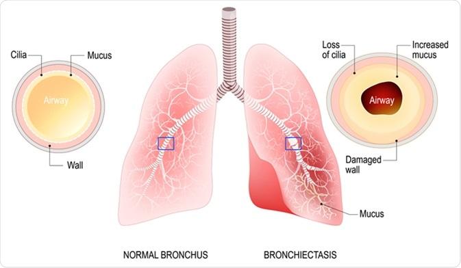 What Causes Bronchiectasis?