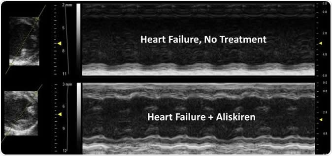 The treated image shows improved contractility of the heart, less ventricle/chamber dilation and improvement in wall thickness compared to the untreated heart