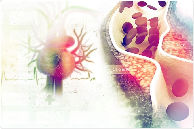 Women with early menopause need to be wary of heart disease