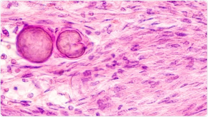 New insight into meningioma - possibility of targeted therapy