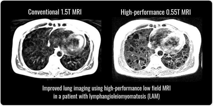 New high performance MRI versus conventional MRI