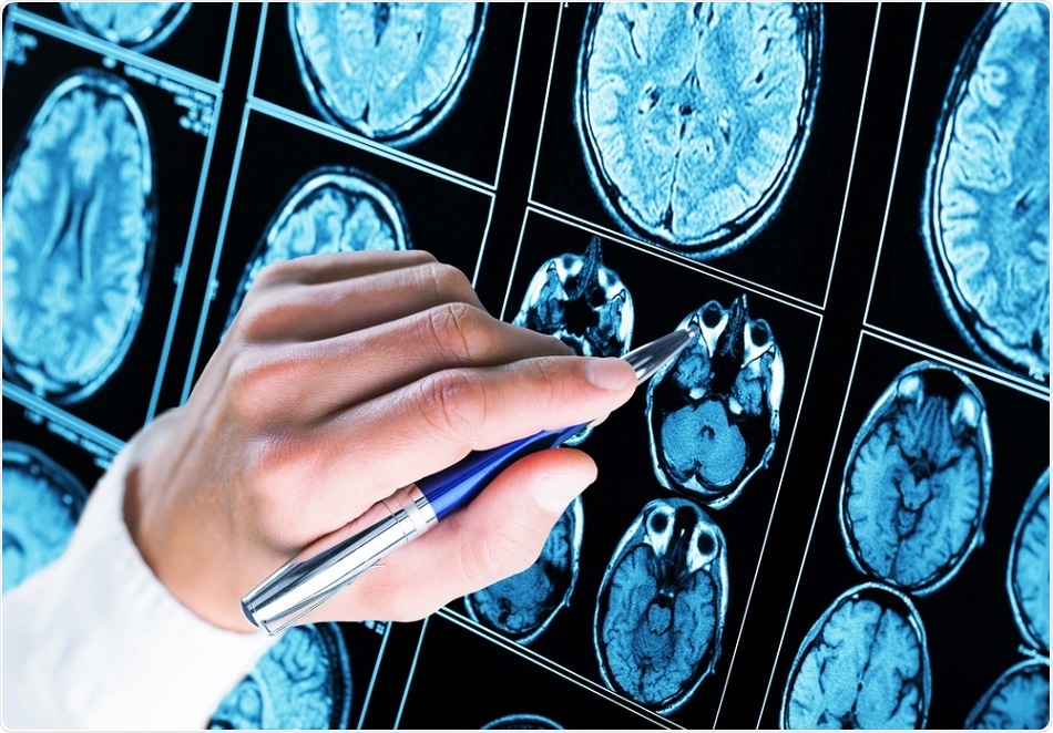 Study shows how brake cell failure causes some types of seizure disorders