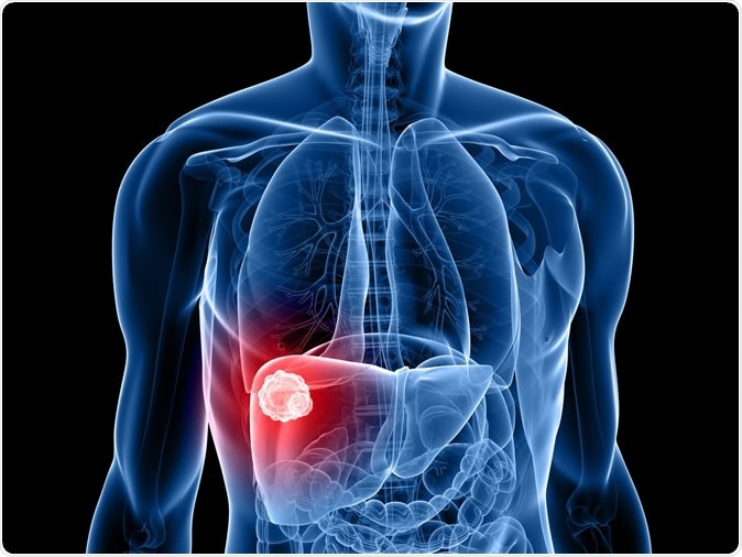 Deaths from liver cancer increased 3-fold over 20 years in England