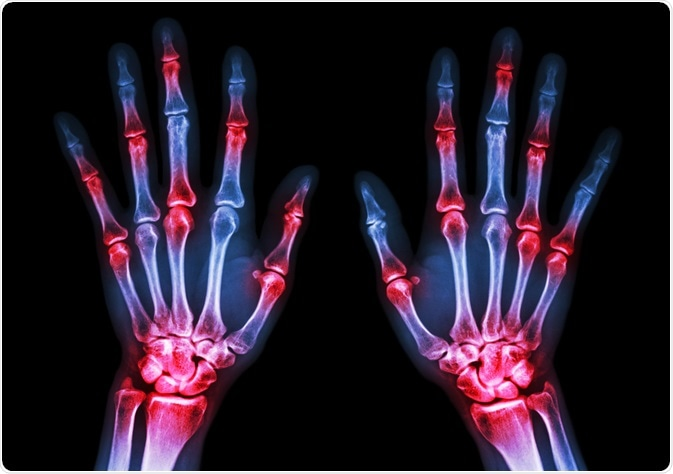 Can Antibiotics Increase The Risk Of Arthritis