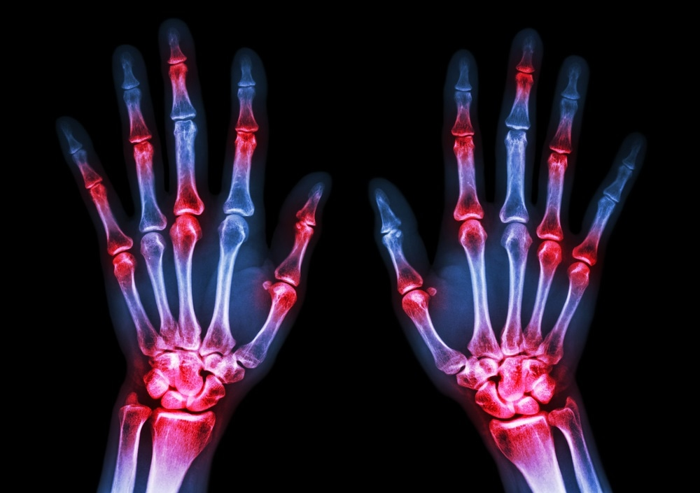 Newly Discovered Cell Involved In Rheumatoid Arthritis Could Serve As Treatment Target
