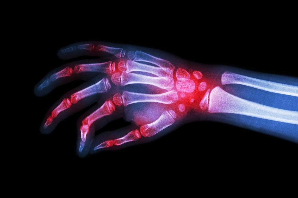Rheumatoid arthritis linked to other diseases, finds new study