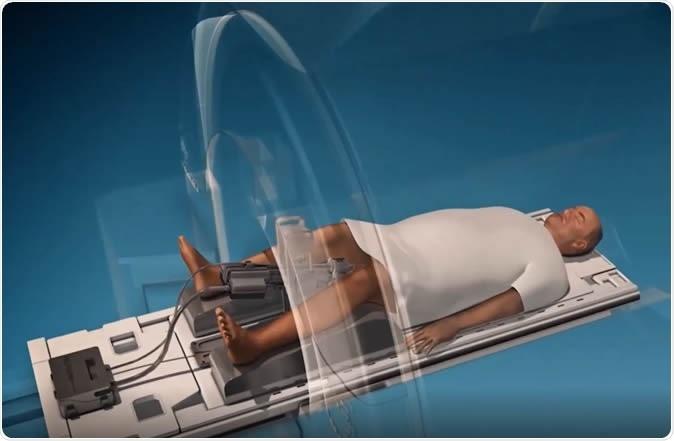 MRI-guided ultrasound ablation: safer better treatment for prostate cancer