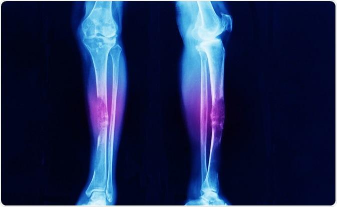 Causas y síntomas del cáncer de hueso