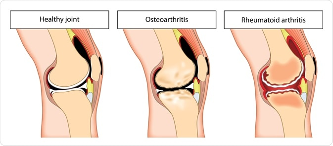 Osteoarthritis Vs Rheumatoid Arthritis Understanding The Differences