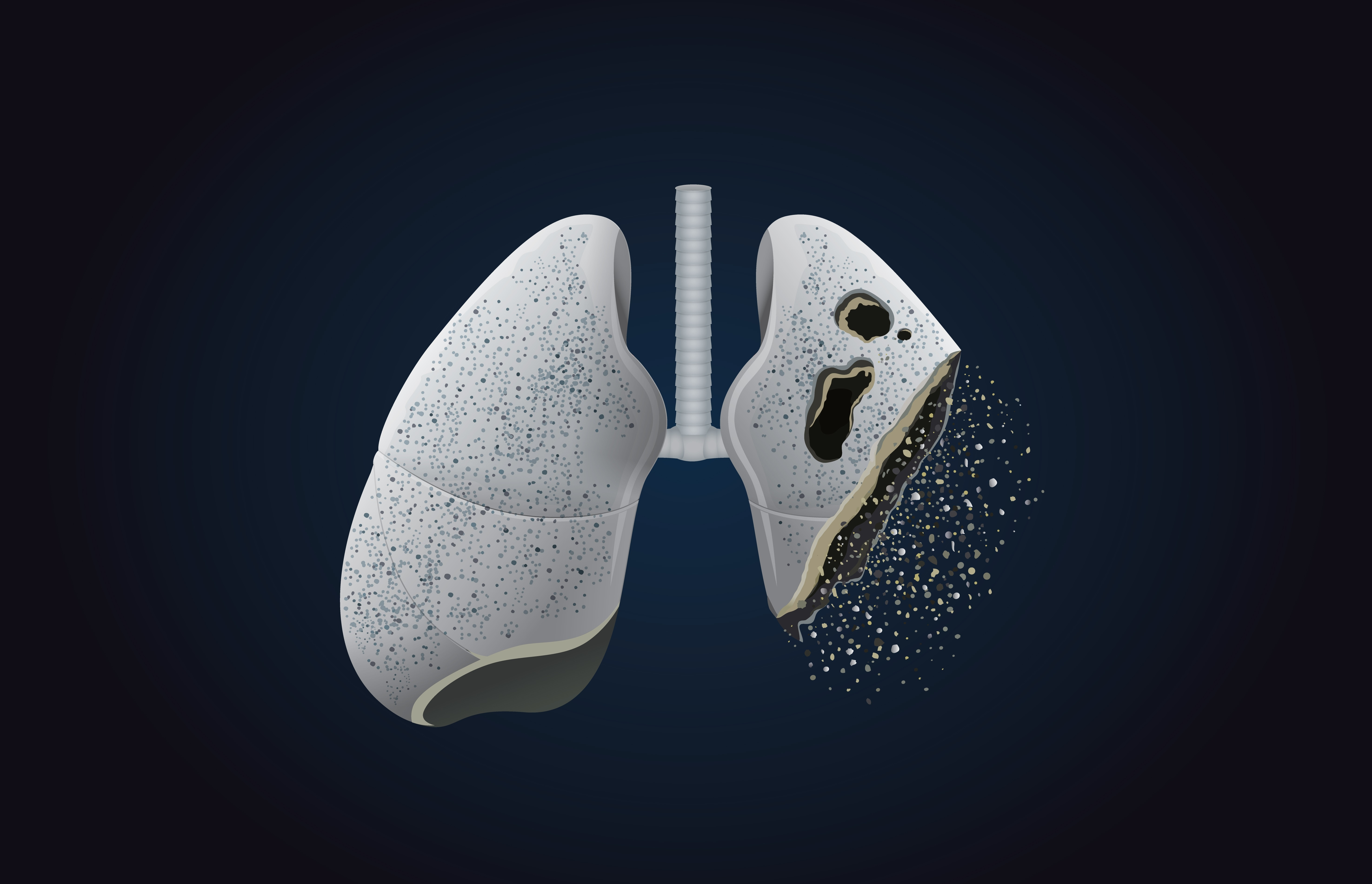 Woman has developed rare form of lung metal-scarring from vaping