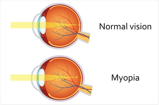 myopia mi iol