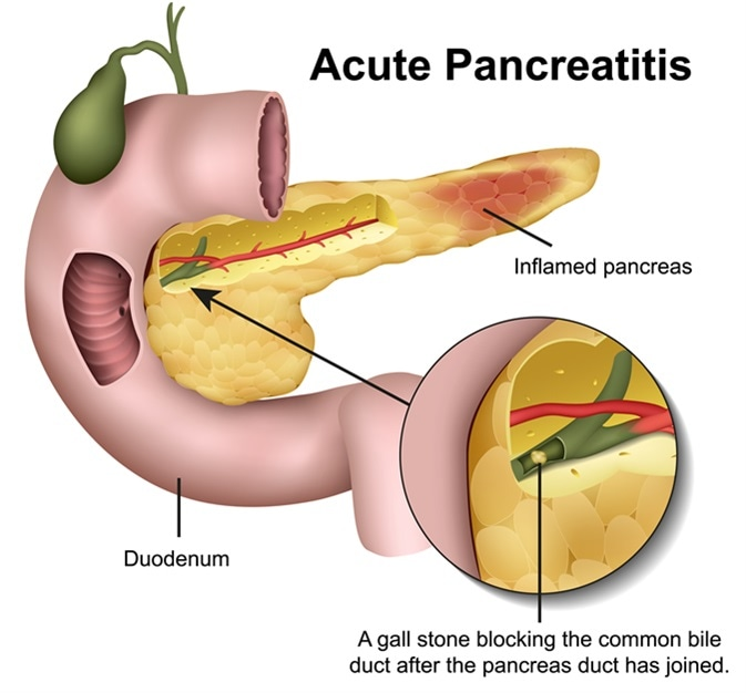high protein diet in acute pancreatitis?