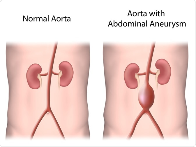 Cancer and abdominal aortic aneurysm, Meaning of papilloma in marathi