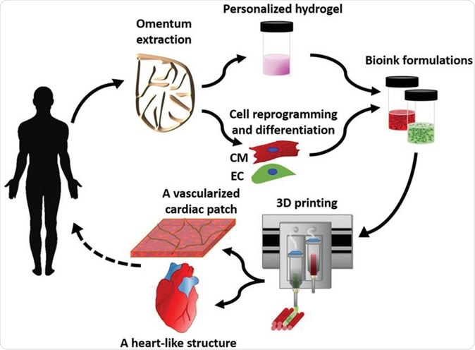 Concept schematic. An omentum tissue is extracted from the patient and while the cells are separated from the matrix, the latter is processed into a personalized thermoresponsive hydrogel. The cells are reprogrammed to become pluripotent and are then differentiated to cardiomyocytes and endothelial cells, followed by encapsulation within the hydrogel to generate the bioinks used for printing. The bioinks are then printed to engineer vascularized patches and complex cellularized structures. The resulting autologous engineered tissue can be transplanted back into the patient, to repair or replace injured/diseased organs with low risk of rejection. Image Credit: Nadav Noor Assaf Shapira Reuven Edri Idan Gal Lior Wertheim Tal Dvir