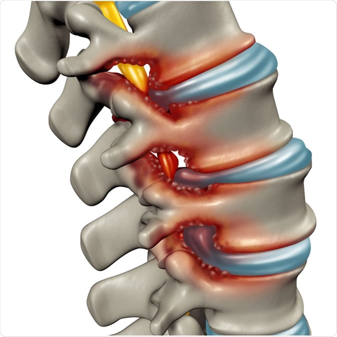 Spinal Stenosis Causes, Diagnosis & Management