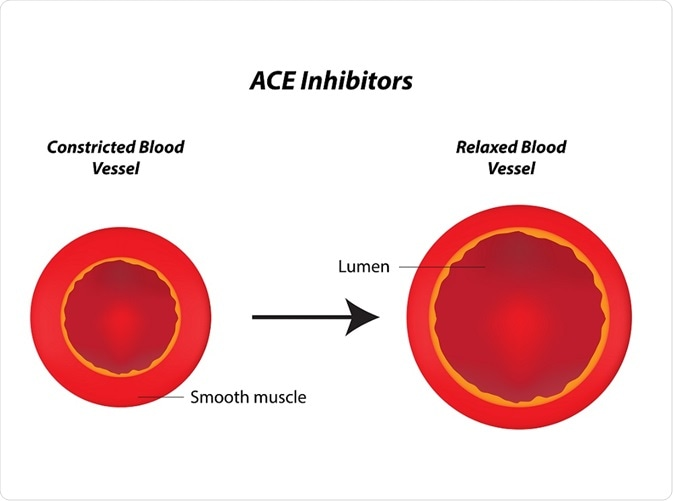 Ace Inhibitors Mechanism Of Action Side Effects And Precautions