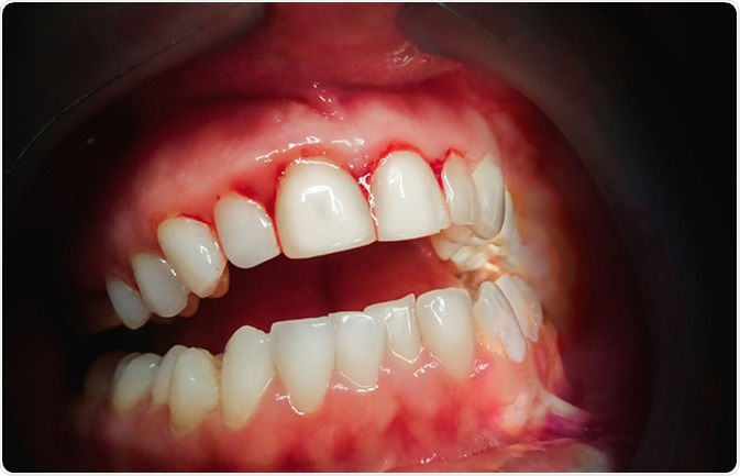 Bleeding Gums: When to be Concerned?