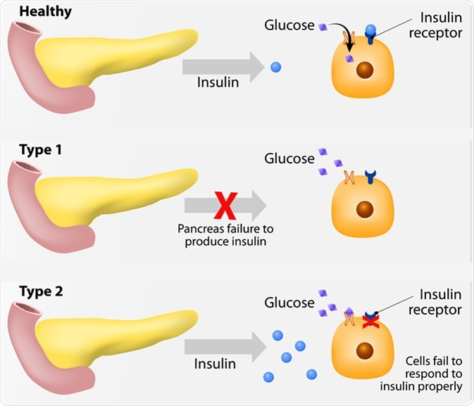 Main types of diabetes mellitus. Either the pancreas not producing enough insulin or the cells of the body not responding properly to the insulin produced