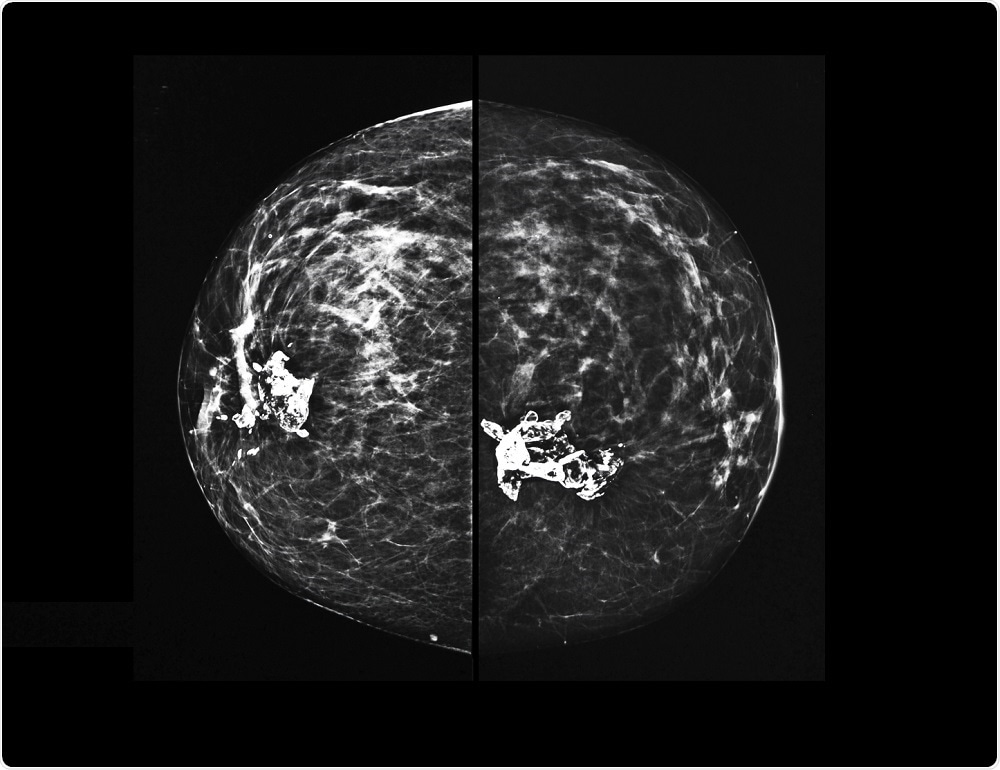 3d Mammograms Increasing In Popularity For Breast Cancer Screening