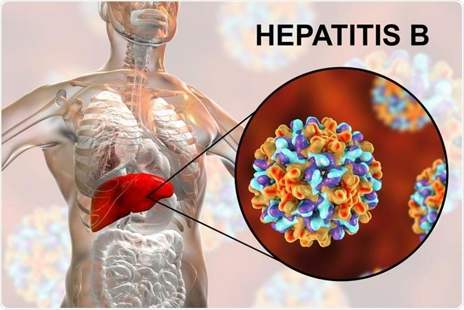 el 90% de casos de la hepatitis, muertes de la hepatitis del 65 ...
