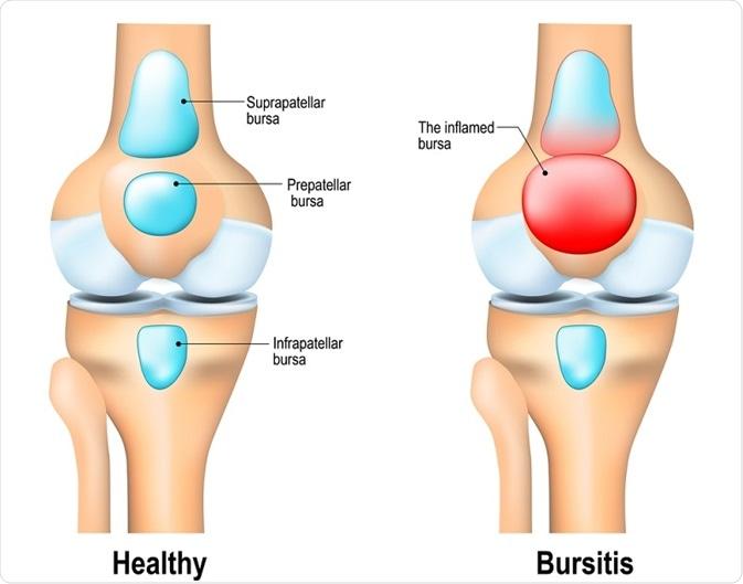 a bursitis arthritis kezelésére