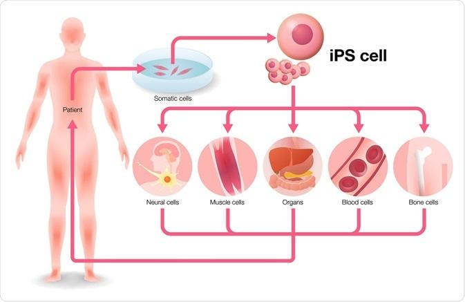 Cellules souche induites de Pluripotent (iPS) dans le médicament et la  recherche