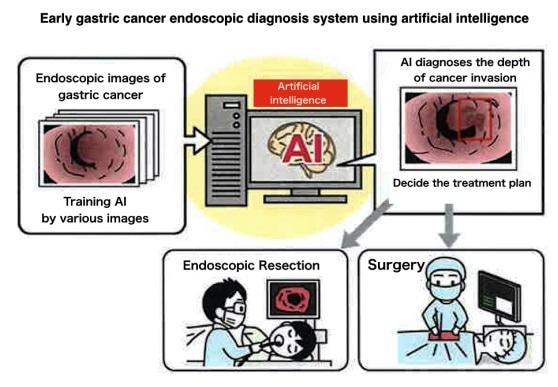 gastric cancer investigations)