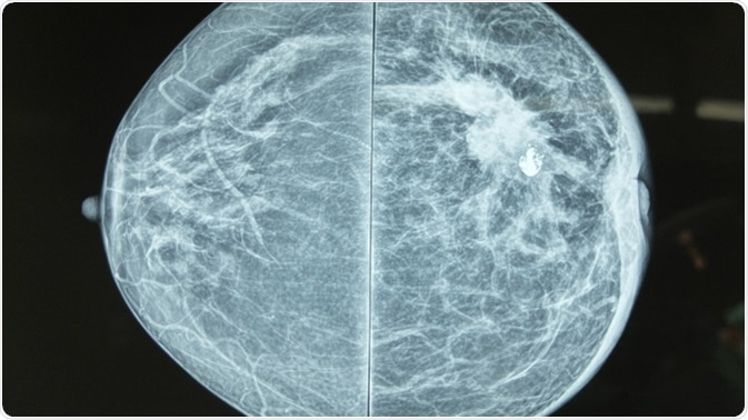 Thermography Versus Mammography Which Is Best