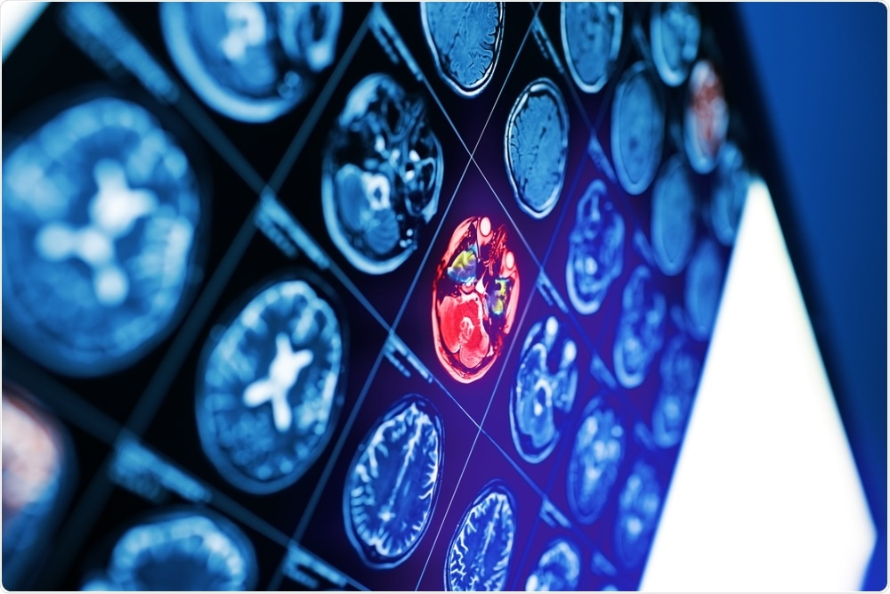 Mri Scans Show How Adhd Medication Affects Brain Structure