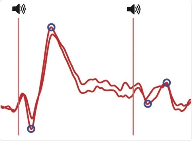 Decreased brain response to the same repeated sound at an interval of half a second (left is sound 1, right is sound 2). Illustration: the responses recorded above the auditory areas of the cortex by means of electroencephalographic electrodes. CREDIT © UNIGE