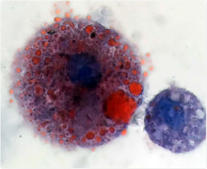 Lipid-laden macrophages found in patients with vaping-related respiratory illness. Oily lipids are stained red. Image Credit: Andrew Hansen, MD, Jordan Valley Medical Center