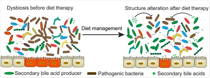 Gut microbiome and IBD – the connection maybe in diet says study