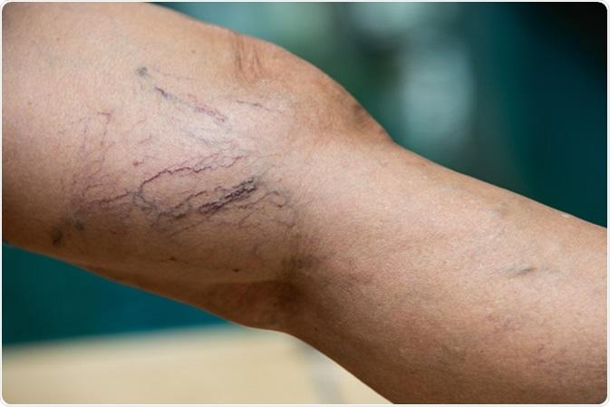 diferite picioare de la varicoză box în timpul picioarelor varicoase