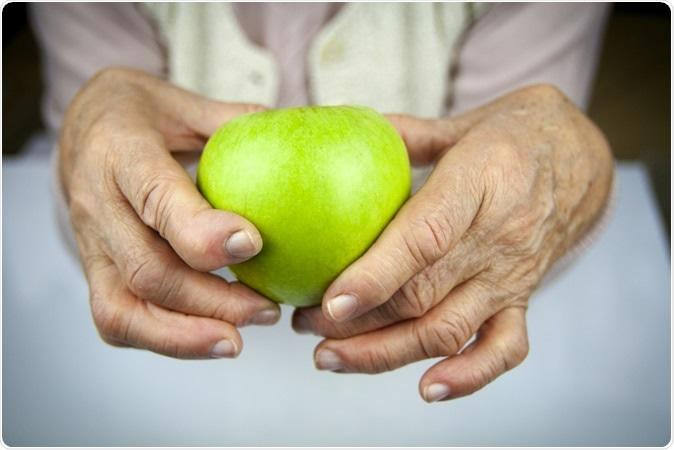 Rheumatoid arthritis in the hands