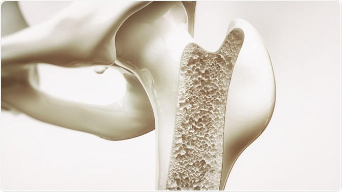 Too much Vitamin D could be harmful to bones