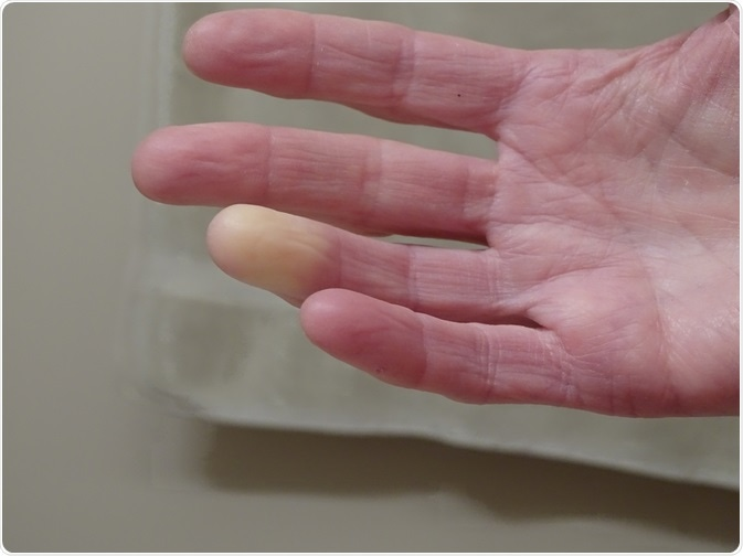 Picture of patient with Raynaud's syndrome - hand is turning white in response to cold temperature - taken By Barb Elkin