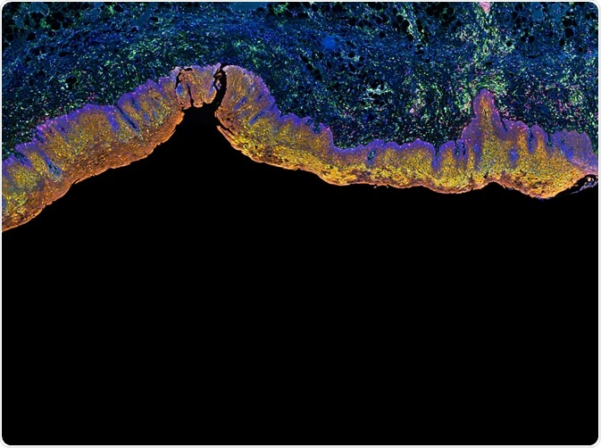 Fluorescent tissues stained using IHC Techniques - By Carl Dupont