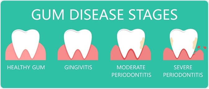 Diagram showing the stages of gum disease - illustration by diluck