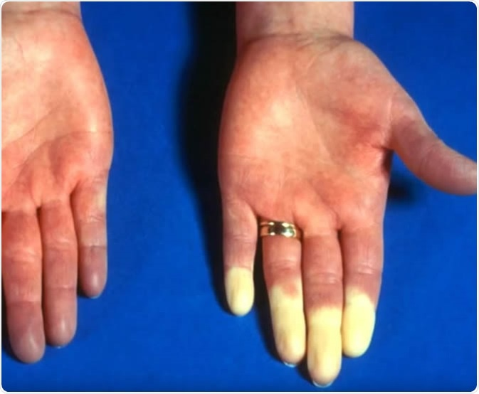 Raynaud's syndrome cases some areas of your body, usually your fingers and toes, to feel numb and cold in response to cold temperatures or stress.