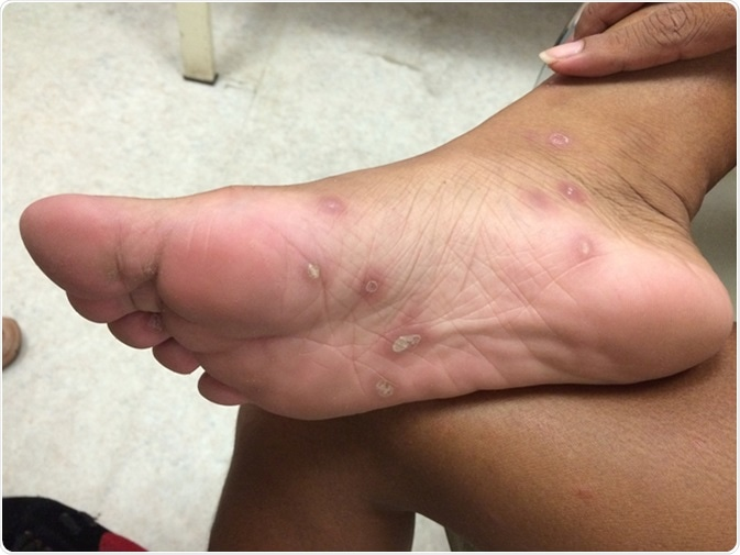 Secondary Syphilis of feet. Image Credit: TisforThan / Shutterstock