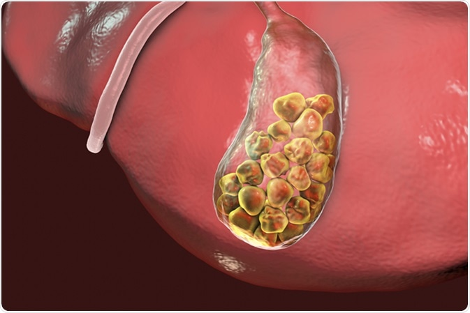 Gallstones, 3D illustration showing bottom view of liver and gallbladder with stones. Image Credit: Kateryna Kon / Shutterstock