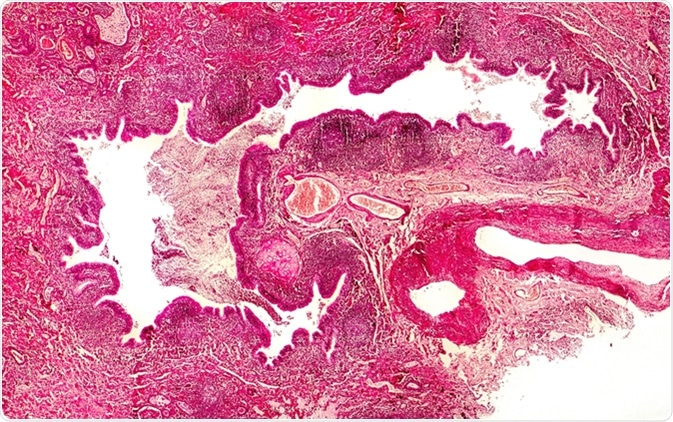 Bronchiectasis, cross-section through bronchus. Light photomicrograph showing dilatated and distorted bronchus containing pus - Image Credit: Kateryna Kon / Shutterstock