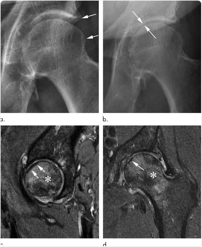 Rapid progressive osteoarthritis joint space loss (type 1) and subchondral insufficiency fracture in a 53-year-old man who presented with hip pain. (a) Anteroposterior left hip radiograph shows mild osteophytic changes (arrows) and no joint space loss. This patient was referred for intra-articular corticosteroid injection. (b) Seven weeks after injection, he returned with worsening hip pain. Repeat anteroposterior left hip radiograph shows accelerated loss of joint space (arrows). (c) Sagittal intermediate-weighted fat-suppressed MRI obtained at the same time as b shows a linear subchondral hypointensity representing subchondral insufficiency fracture of the anterior superior femoral head with subtle flattening of the overlying articular surface (arrows). Extensive bone marrow edema extends to the femoral neck. (d) Corresponding coronal intermediate-weighted fat-suppressed MRI enables us to confirm the presence of a subchondral insufficiency fracture (arrow) and depicts the true extent of bone marrow edema. Image Credit: Radiological Society of North America