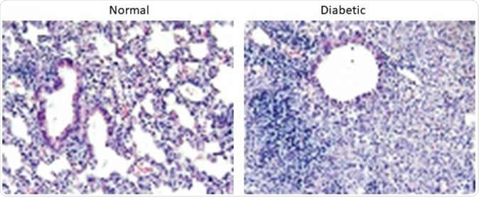 Lung sections from 21 days after infection with MERS-CoV in normal mice (left) and diabetic mice (right). We find that normal mice resolve the inflammation faster than diabetic mice leading to prolonged weight loss and disease in the diabetic mice. Image Credit: University of Maryland School of Medicine