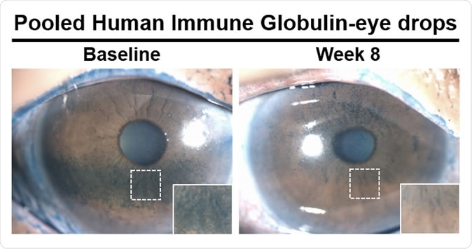 Patients treated with antibody-based eye drops saw reduced amounts of dry areas (blue spots) on the surface of the eye after eight weeks. Image Credit: Sandeep Jain, et al