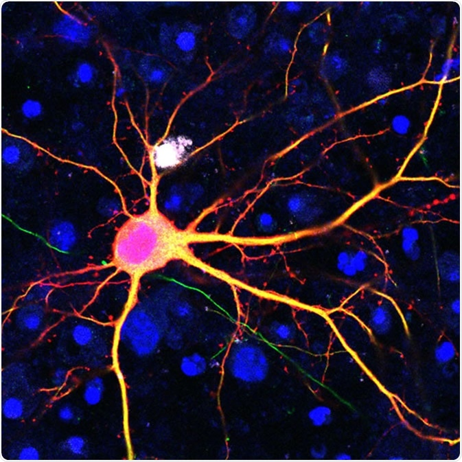 Neuron targeted using the SATI technology. Image Credit: Salk Institute